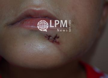Brasileiro, menor de idade, foi vítima de agressão na escola O.S.Tourtonne 3