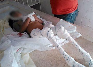 Criança morre comida por piranhas em Monte Alegre (Imagens Forte)