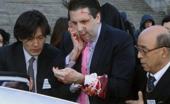 Coreia do Norte diz que ataque contra embaixador americano é castigo justo