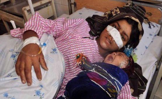 Marido corta fora nariz da esposa após mulher impedi-lo de se casar com criança de 7 anos
