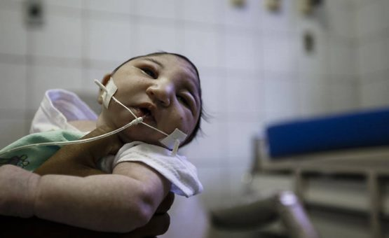 Microcefalia: casos confirmados chegam a 1.168, segundo ministério