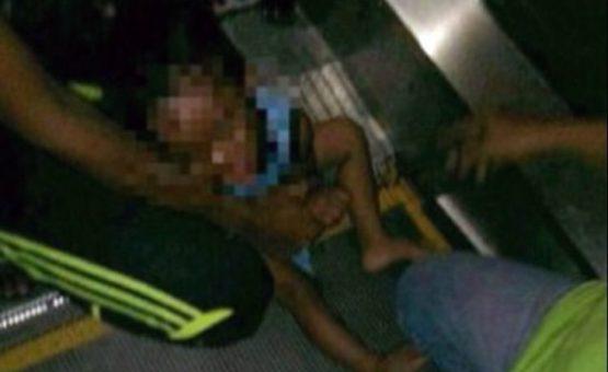 Criança tem parte do pênis arrancado após membro ficar preso em escada rolante