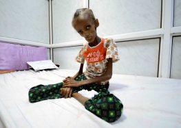 Cruz Vermelha diz que há janela de três meses para evitar fome em massa no Iêmen e na Somália