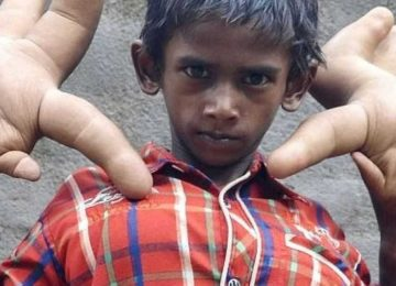 Com mãos gigantes, garoto com doença rara é chamado de 'diabo'
