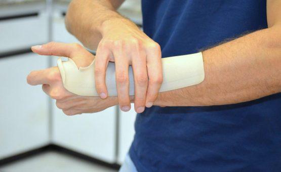 Pesquisador da UFSCar cria material de plástico para substituir gesso ortopédico