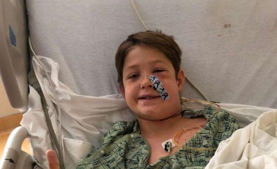 O 'milagre' que salvou garoto que teve cabeça atravessada por espeto de churrasco ao cair de árvore