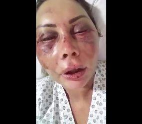 Rayron Gracie posta foto abraçado à mãe na cama do hospital após espancamento: 'Guerreira'