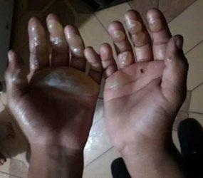 Mãe é suspeita de queimar mãos do próprio filho com ferro de passar