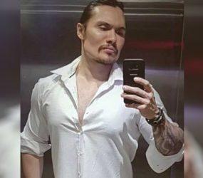 Médico acusado de deformar rosto de pacientes é condenado a indenizar mulher que ficou com sequelas após tratamento estético