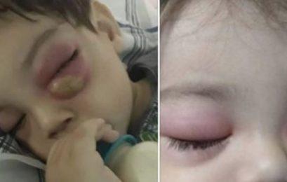 Mãe alerta para consequência grave de sinusite que atingiu seu filho